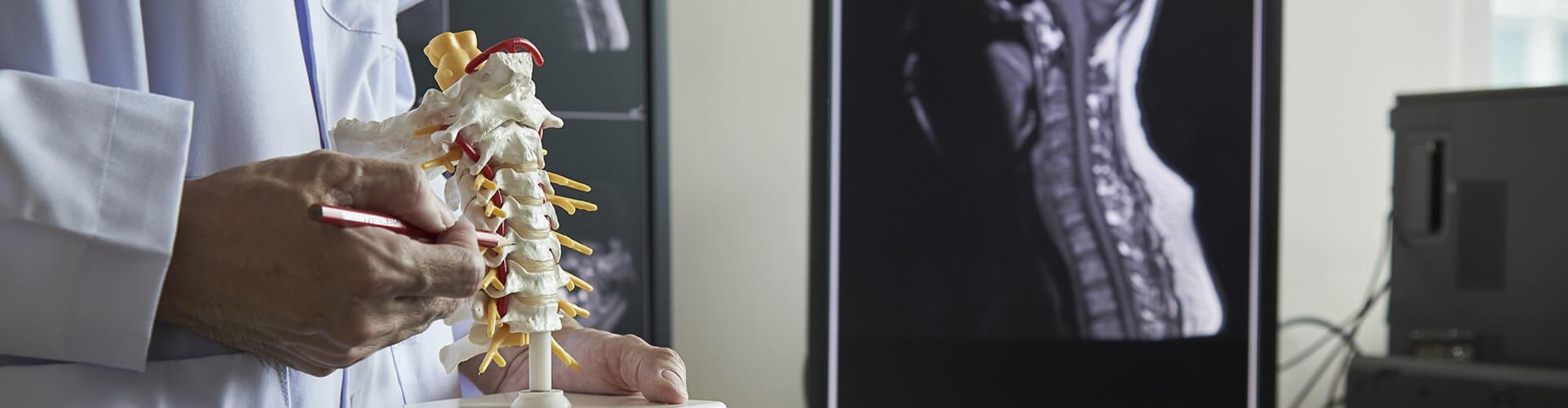 Aneurismas Cerebrais, Tumor de Hipofise
